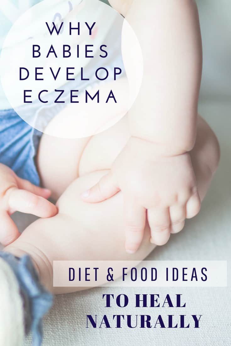 Baby Eczema Causes and Triggers, Diet And Food Recipe Ideas To Heal Naturally (Including for nursing mothers, Infants, and Toddlers ). Learn more about baby eczema and gut connection. #healthyeating #naturalremedies #eczema #babyfood #baby